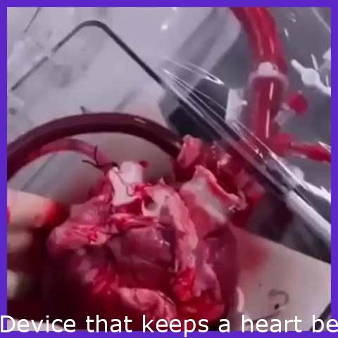 Machine that keeps a heart beating outside the body during a transplant