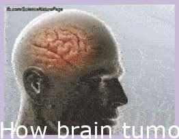 How brain tumors are removed